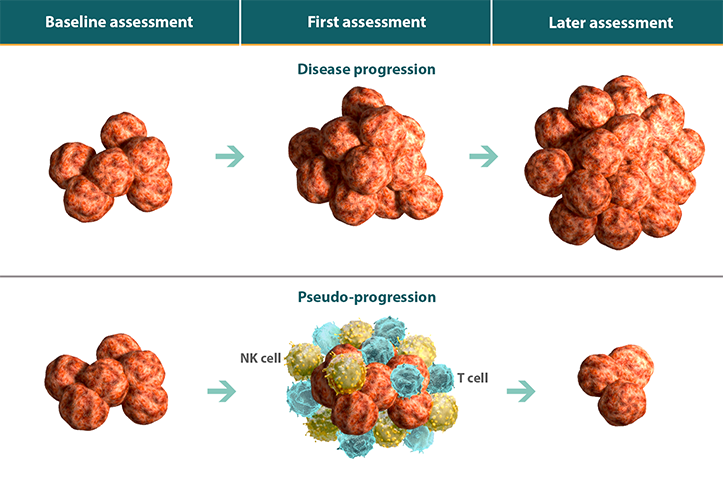 Diagram comparing tumors during disease progression and pseudo-progression