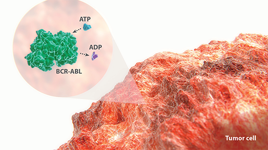 BCR-ABL interacting with ATP and ADP expressed on a tumor cell diagram